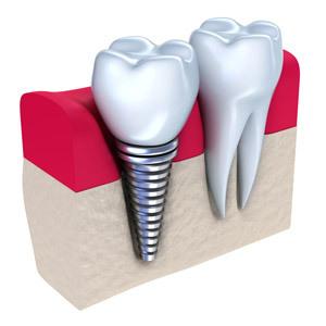 人工植牙,台中人工植牙,台中植牙,假牙