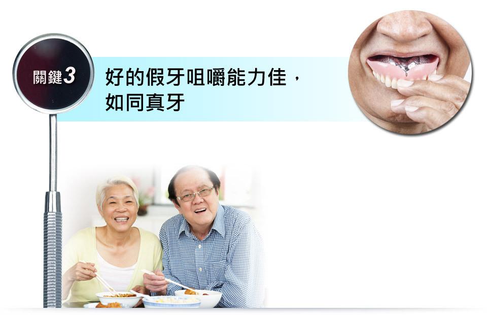 台中植牙推薦